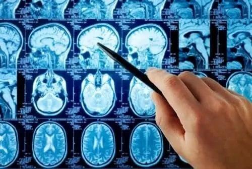 Medic care examinează un RMN cerebral
