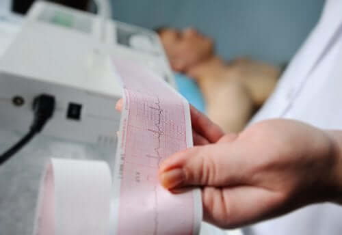 Medic monitorizând simptomele flutterului atrial cu un apart EKG