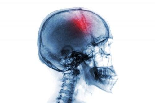 Radiografie ilustrând un craniu cu o zonă evidențiată în roșu