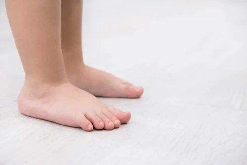 Caracteristici și tratamente pentru piciorul plat