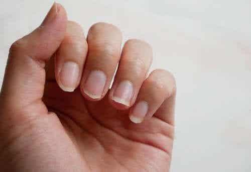 Tratamente pentru unghiile fragile 100% naturale