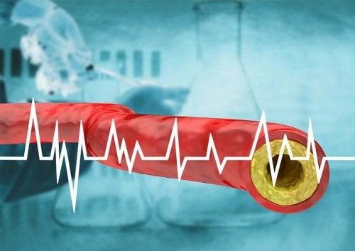 Prevenirea hipercolesterolemiei prin dietă