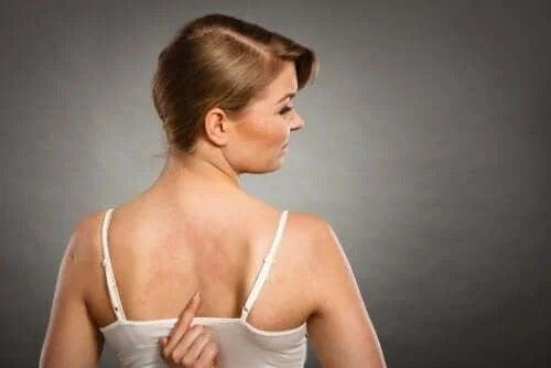 Alergiile la aditivii alimentari pot apărea pe piele