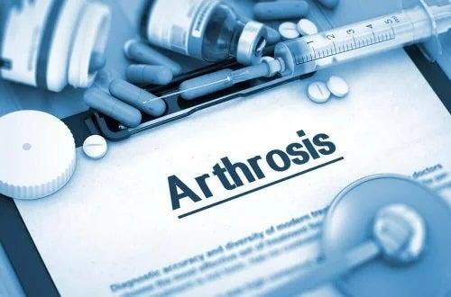 Medicamentul Arcoxia folosit pentru artroză