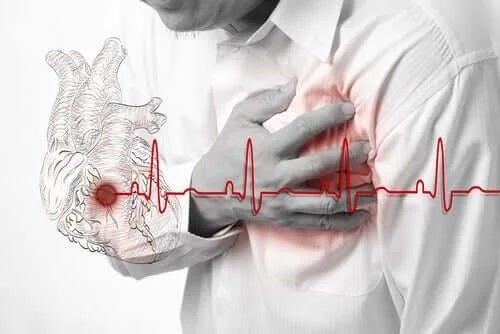 Bărbat care suferă un infarct