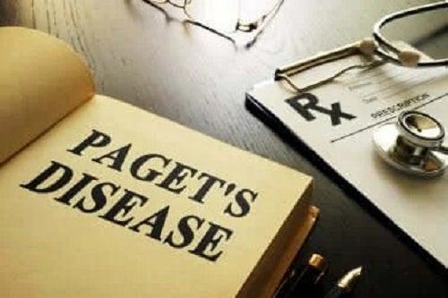 Ce este boala Paget și cum se tratează?