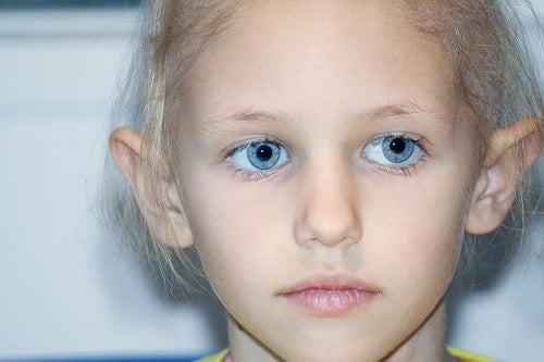 Copil prezentând simptomele retinoblastomului