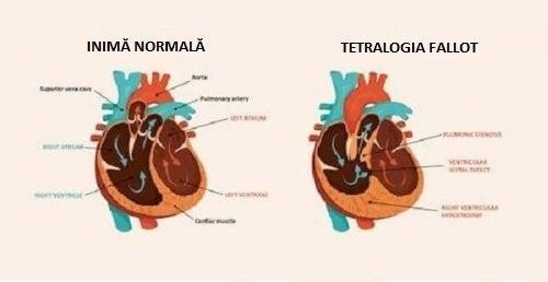 Desen ilustrând o inimă afectată de una dintre bolile cardiace congenitale