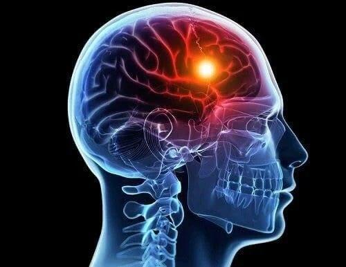 Scanare care arată ce este embolismul cerebral