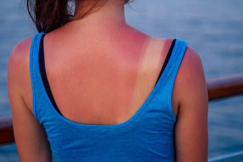 Femeie cu pielea arsă care suferă de dependența de bronz