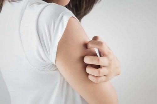 Femeie scărpinându-se din cauza unor mâncărimi la nivelul brațului