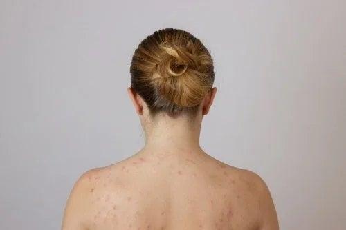 Femeie care se confruntă cu nodulii de grăsime de pe spate
