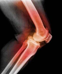 Luxația de rotulă la genunchi