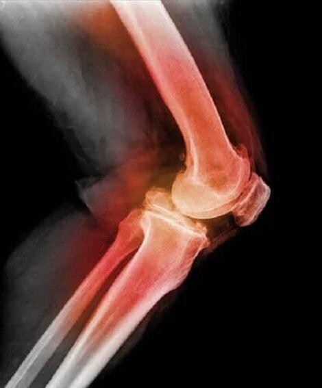 articulația uscată a genunchiului