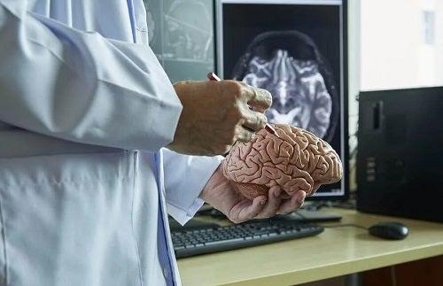 Medic care examinează o machetă de creier