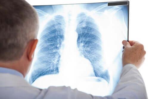 Medic studiind o radiografie toracică