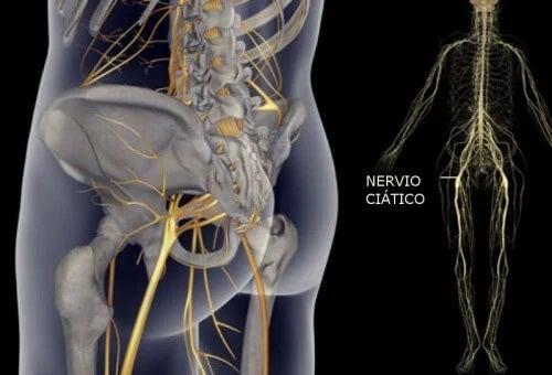 Exerciții simple pentru durerea sciatică