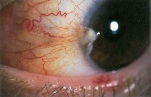 Ochi ce este afectat de pterigionul inactiv