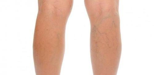 Picioare cu probleme venoase