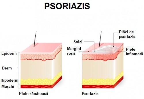 Cum afectează psoriazisul pielea