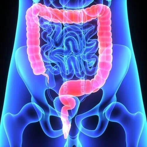 Simptome ale polipilor colorectali