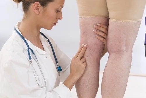 Simptome periculoase pentru femei la nivelul picioarelor
