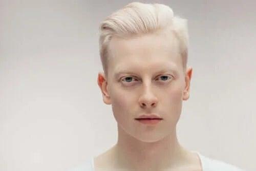 Ce este albinismul și de ce apare?