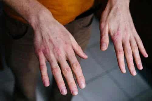 Mâinile uscate și crăpate: protecția împotriva frigului