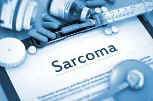 Caracteristicile și cauzele apariției sarcomului