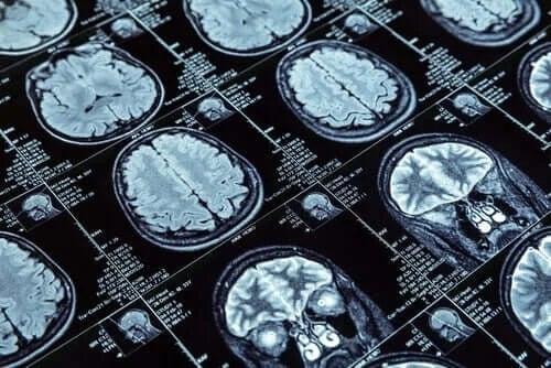 Comportamentul antisocial și structura creierului