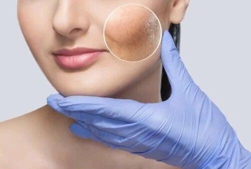 Dermatolog care folosește liftingul facial fără operație
