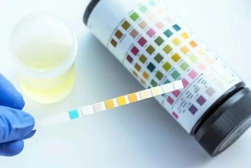 Ce poate fi detectat prin analiza urinei?