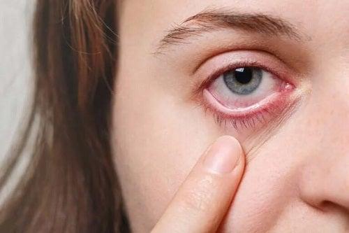 Fată cu migrenă oculară