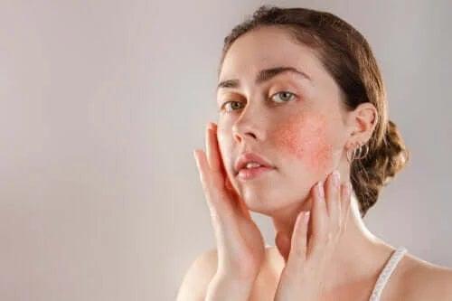 Pielea reactivă: simptome, cauze și tratemente