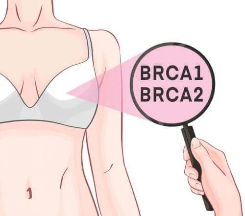 Genele BRCA-1 și BRCA-2 și cancerul de sân