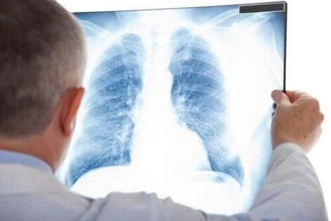 Dieta recomandata in bolile pulmonare