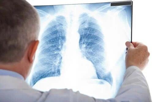 Medic care explică ce este un nodul pulmonar