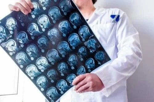Medic care examinează rezultatul unui RMN
