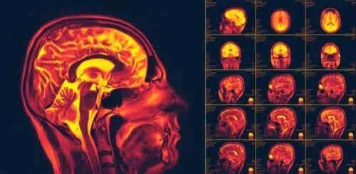 Ce este neuroplasticitatea creierului?