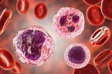 Nivelul ridicat de monocite în sânge: simptome