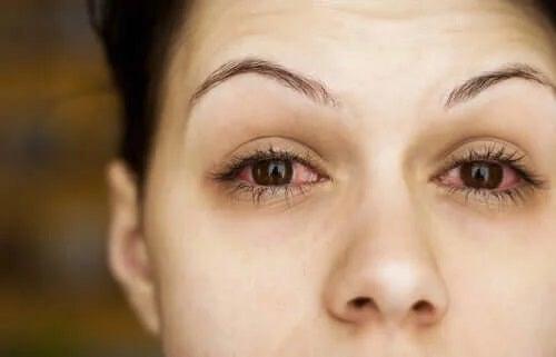 Femeie cu ochii uscați la menopauză