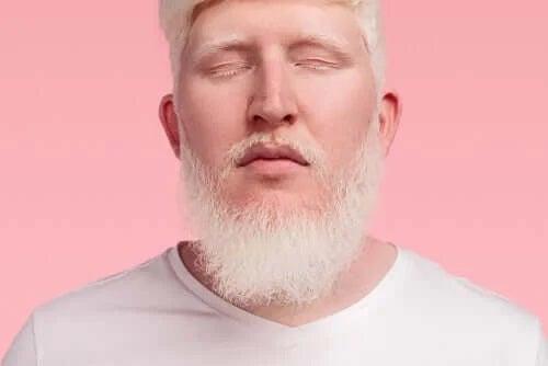 Persoană care suferă de albinism
