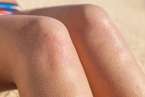 Picioare cu pielea de găină