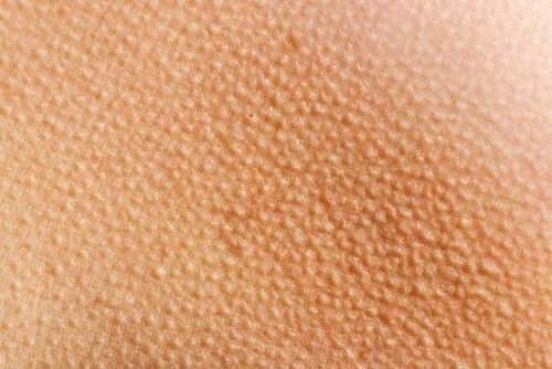 Piloerecția: de ce apare pielea de găină?