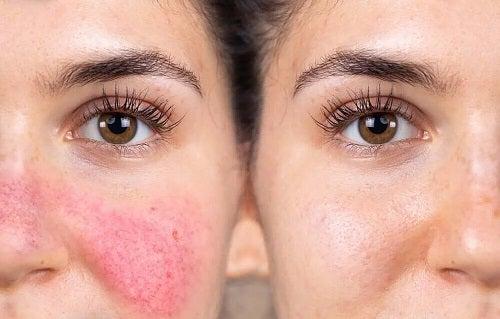 Pielea reactivă versus pielea normală