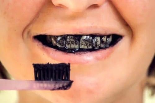 Riscurile cărbunelui activ pentru sănătatea orală