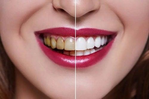 Riscurile cărbunelui activ asupra dinților