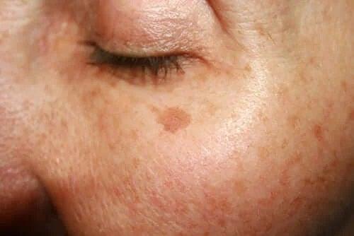 Semnele și alunițele din naștere pe față