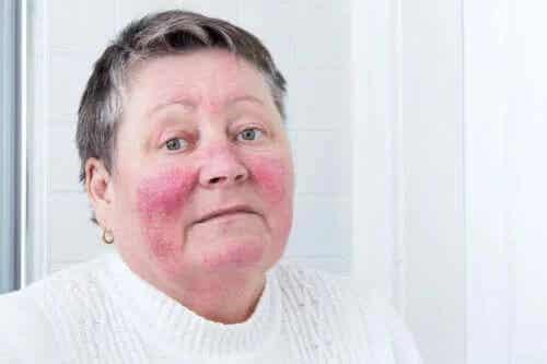 Cauzele și simptomele rozaceei