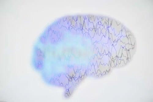 Unde cerebrale în creierul uman